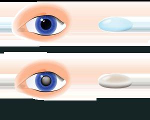 cataracts-300x216