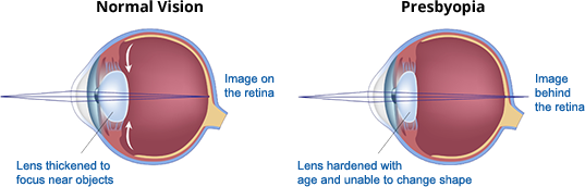 presbyopia-diagram