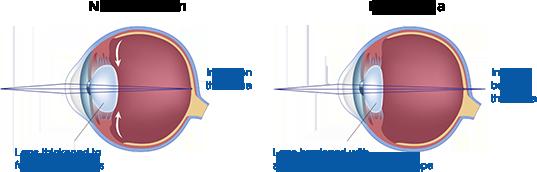 presbyopia-diagram