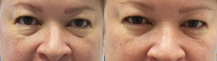 1 Pelleve Eyes Treatment Before 1 month after