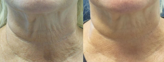 2 Pelleve Neck Treatments Before After